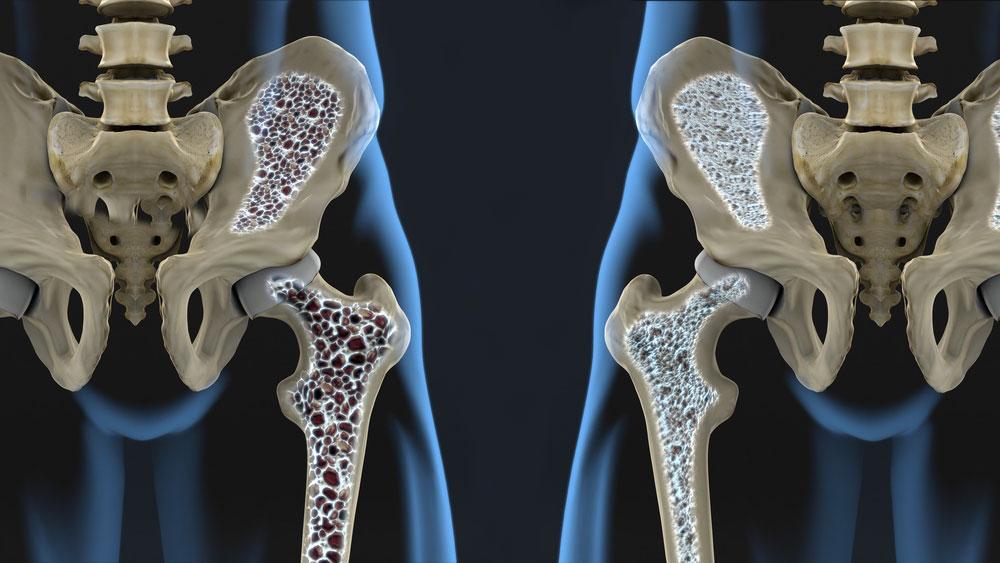 osteoporosi-anca